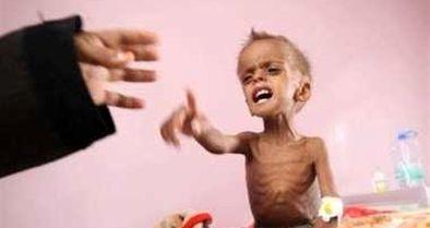 سازمان ملل: شاهد فاز جدید قحطی در یمن هستیم